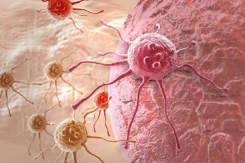 全球医报道:2020年美国最新子宫内膜癌发病率和风险因素评估!
