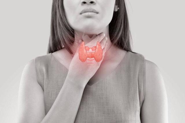"""甲状腺癌很""""懒"""",女性易中招!若有3个症状警惕甲状腺癌已来临"""
