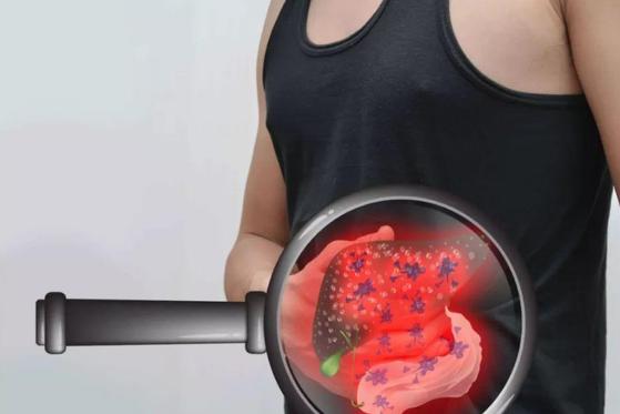 """营养学专家:3类食物又称""""肝脏杀手"""",能够诱发、喂养肝癌细胞"""