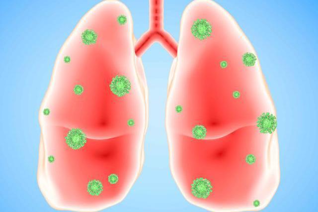 """体内白细胞升高,意味着肺炎已""""到来""""?这种误区究竟害了多少人"""