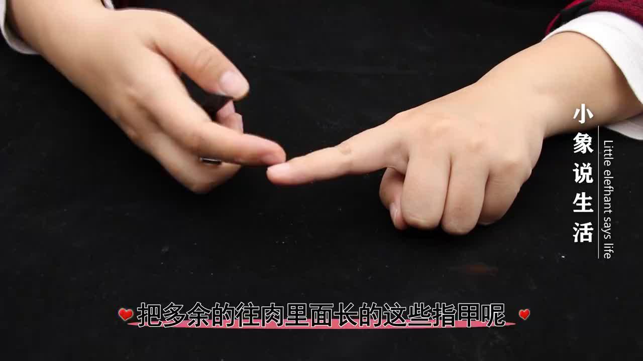 指甲长进肉里太疼啦!教你一招,只需几毛钱,让指甲恢复正常生长