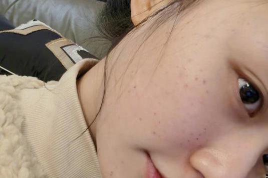 25岁星女郎林允自己打针做医美,满脸针眼好吓人,网友:看着都疼