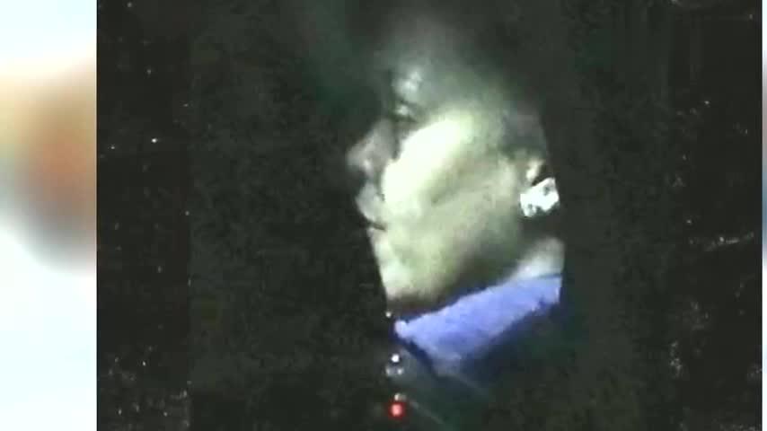 国际天后蕾哈娜脸部肿胀眼眶瘀青 发言人:玩滑板车受伤