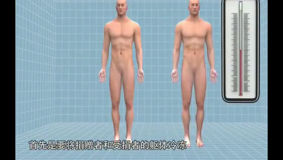 """听过""""换头""""手术竟然成功了,人类的奇迹啊!中国医疗史的壮举!"""