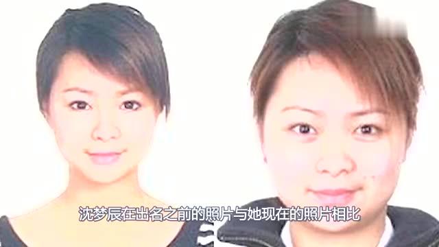 沈梦辰整容前照片流出,矮鼻梁大饼脸,杜海涛不怕遗传给孩子吗