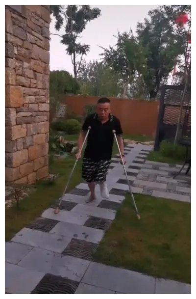 突发:63岁潘长江左脚粉碎性骨折,今年的央视春晚又上不了了