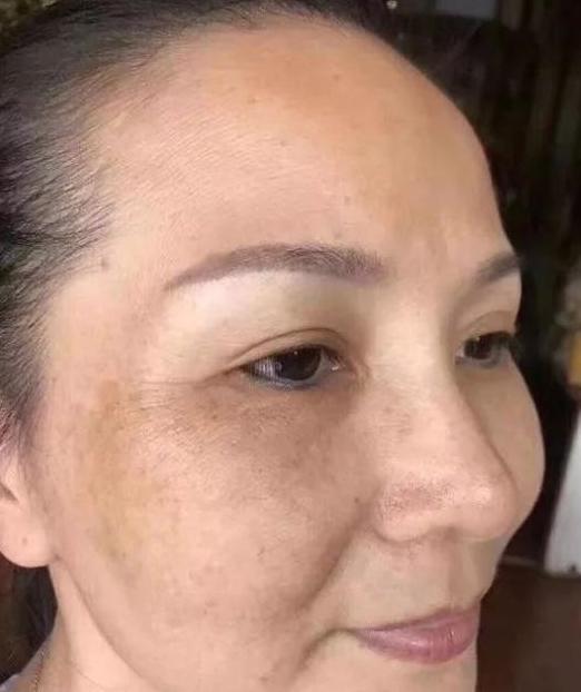 42岁阿姨嫩如小姑娘,脸上斑点用蛋清加便宜的它,半月不到皮肤嫩