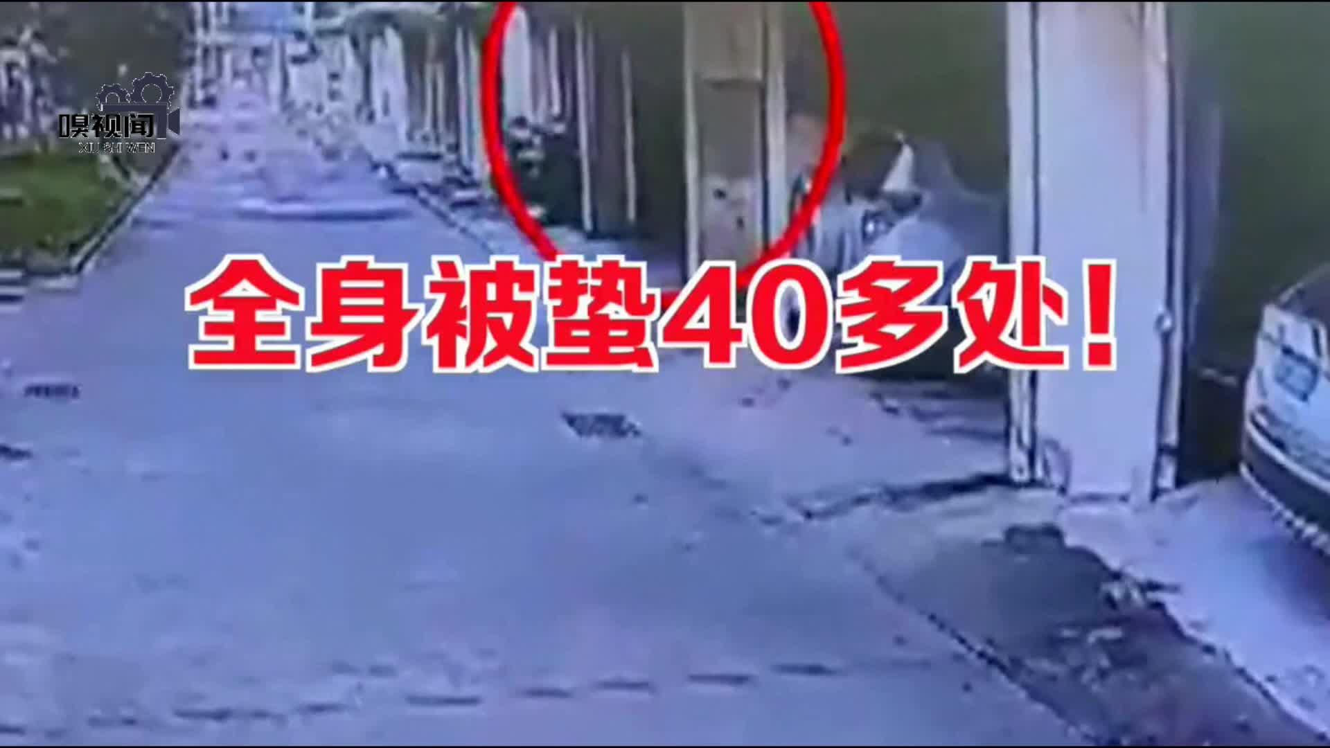 海南琼海:女子小区内遭蜂群袭击,全身被蛰40多处住进ICU