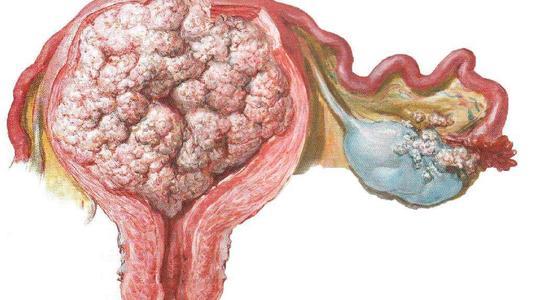全球医:女性恶性肿瘤第二位的子宫内膜癌,应如何预防及治疗!