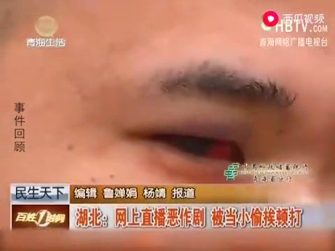 主播直播恶作剧,却被当做小偷一顿打,被打的他眼球充血红肿