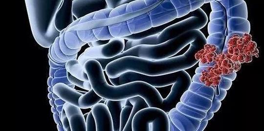 2期临床带来喜人成果:高剂量维生素D对晚期结直肠癌患者有益
