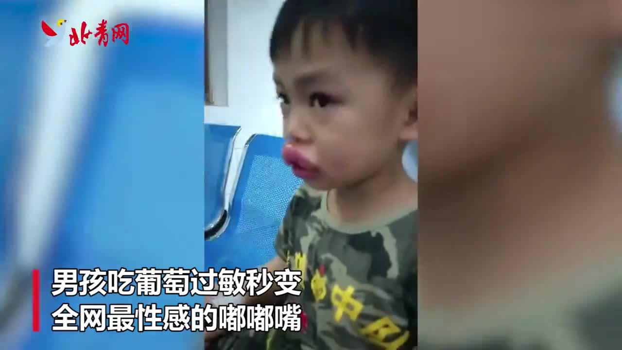"""男孩吃葡萄过敏秒变性感""""嘟嘟唇"""" 老爸也没忍住笑了"""