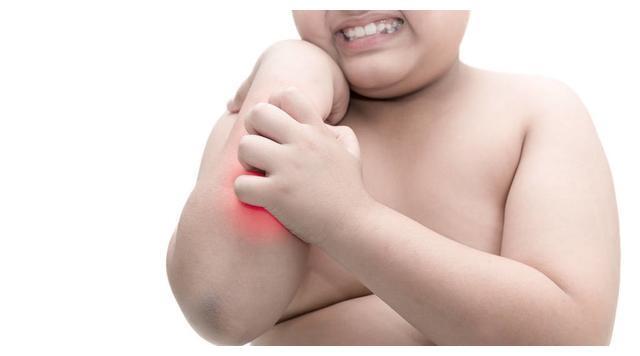 应对孩子皮肤湿疹的事情,我们要解决热的难题