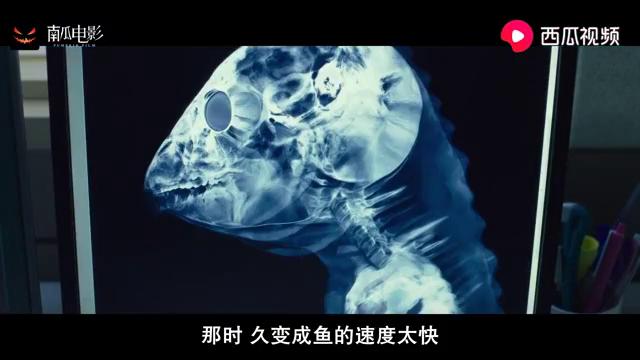 突然变异:鱼人去医院检查,一看X光,医生全都束手无策