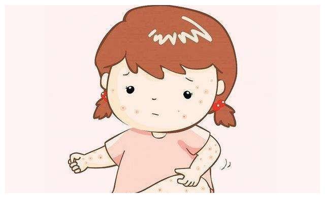李波育儿说:夏季又到了痱子高发季节,与湿疹还在傻傻分不清吗?
