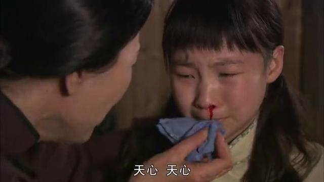 孩子频繁流鼻血,真的得了重病吗