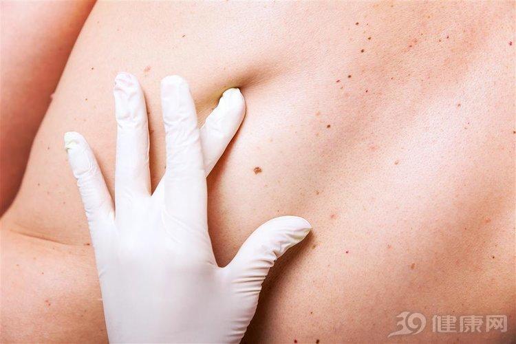 为什么身上总长脂肪瘤,不痛不痒会癌变吗?医生告诉你答案