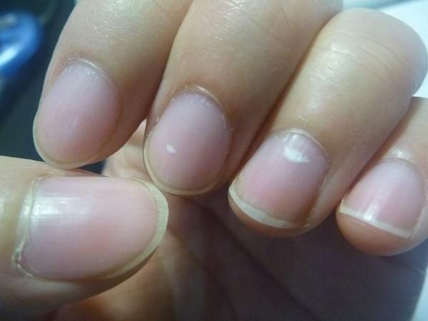 指甲上的白点、月牙、竖纹代表什么?有些问题,建议别忽视的好