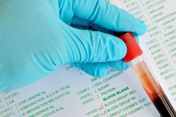 为什么说血型与疾病有关?最健康的血型是哪个?不要疏忽大意了