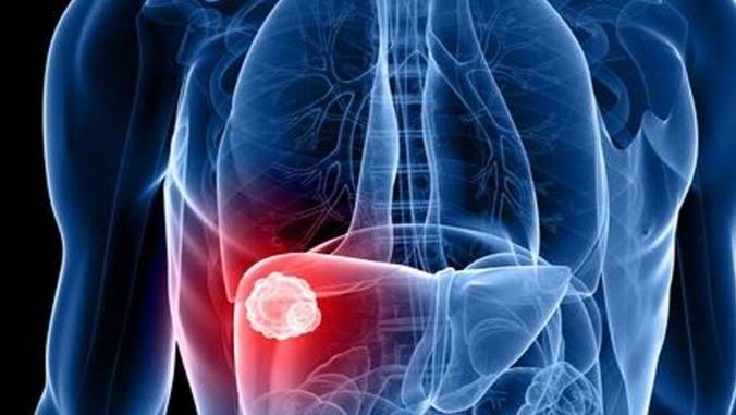 """3种早餐好吃却伤肝,肝炎、肝硬化患者""""绕道""""!肝癌不来扰"""