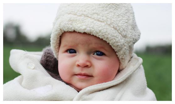 宝宝冬季皮肤问题多,主要是这生活中7类东西在伤娃
