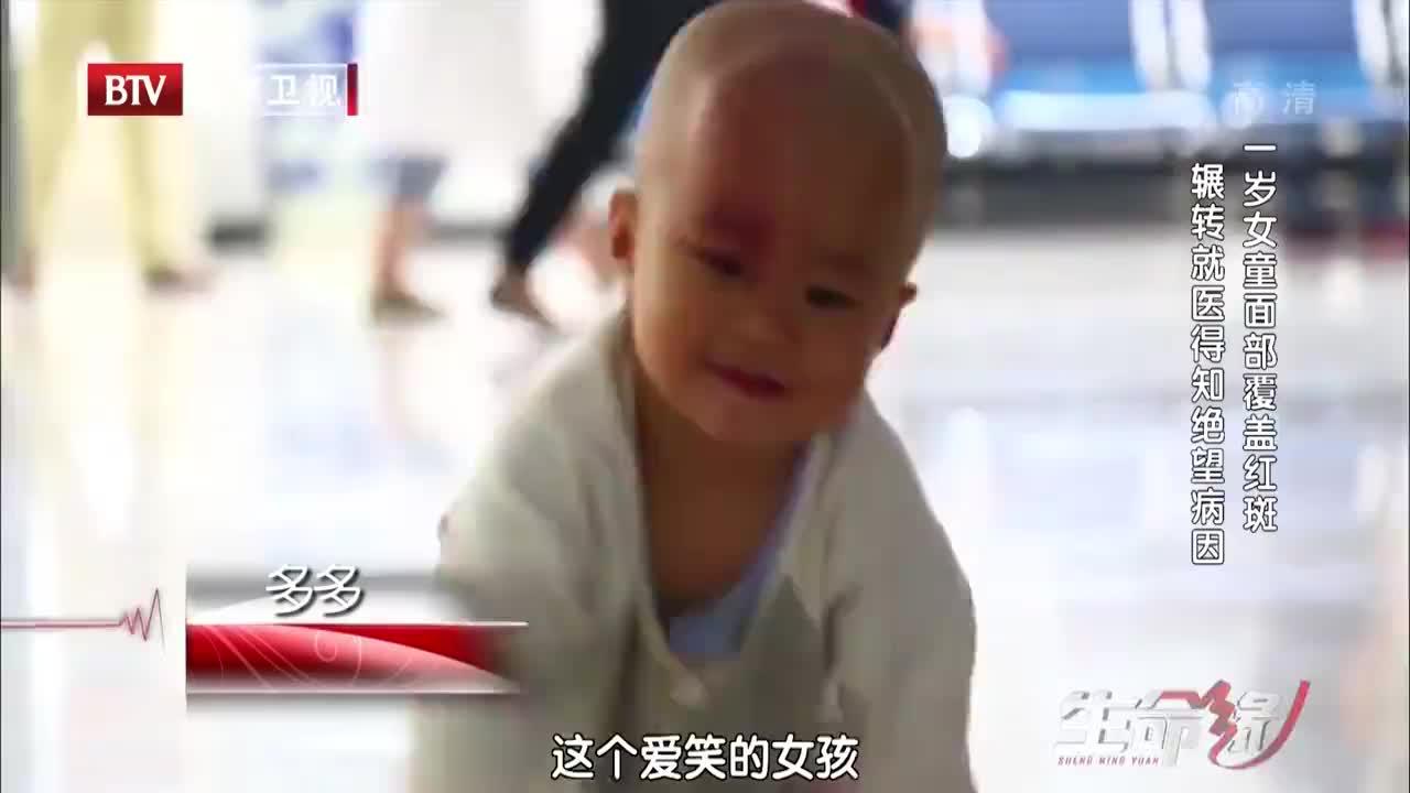 一岁女童面部覆盖红斑,看似毫无大害,最后却要面临开颅风险