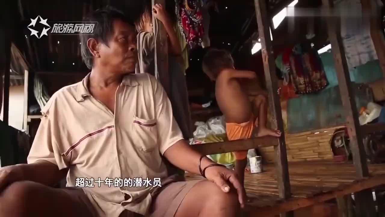 菲律宾渔民,深压潜水捕鱼,胳膊和腿都已经坏死,导致终身瘫痪!