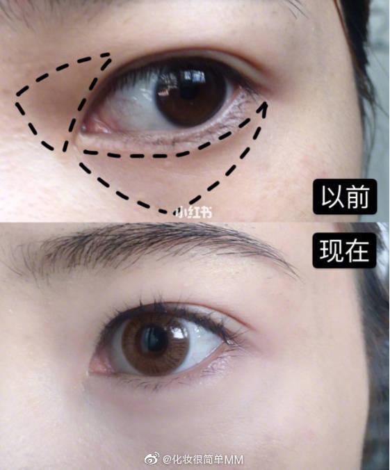 祛黑眼圈·眼袋·淡化细纹👀/眼部穴位按摩法