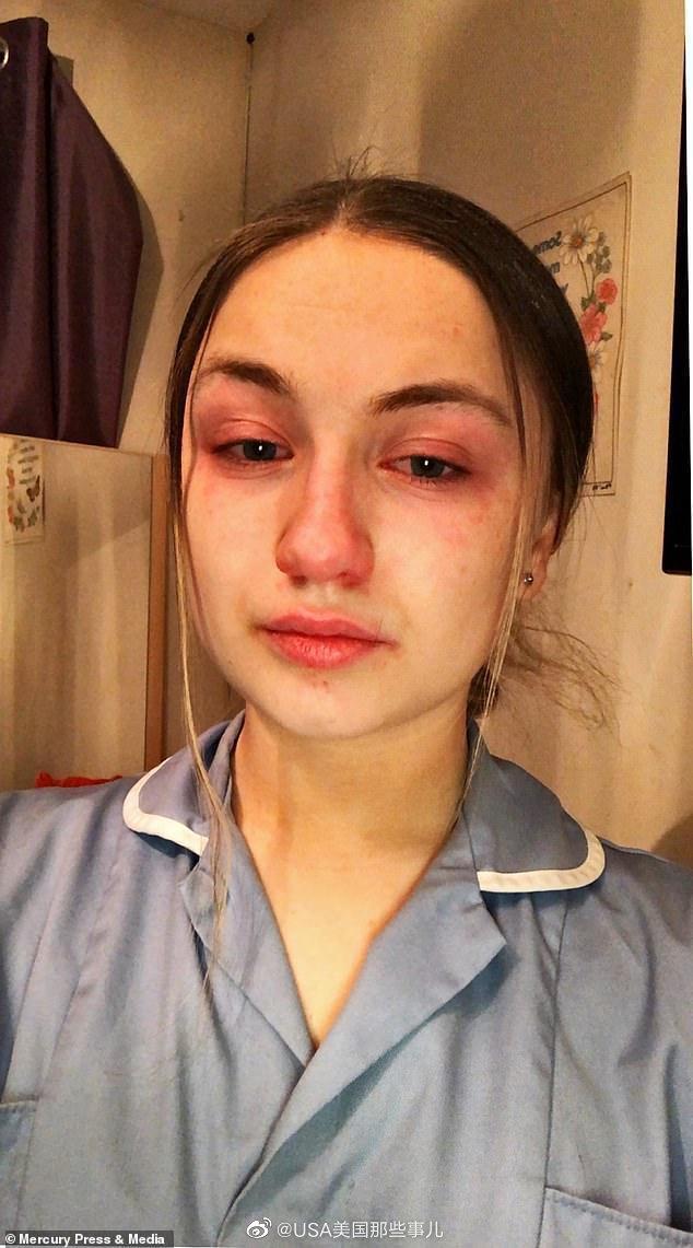 英国一名19岁护士在完成连续高强度13小时工作后,发含泪自拍照