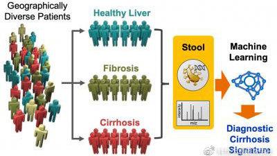 最新突破:肠道微生物菌群可用来诊断肝硬化等肝脏疾病