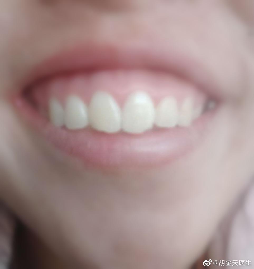 露龈笑是常见的疾病,我更推荐注射肉毒素。毕竟手术创伤确实有点大