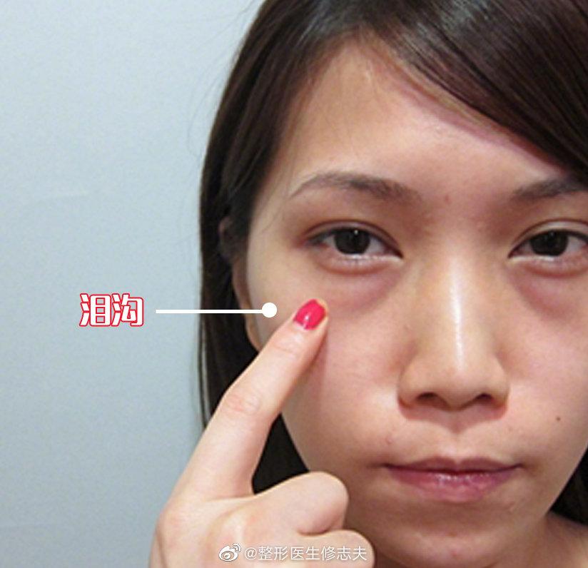 泪沟严重时,会一直从眼角延伸到中面部