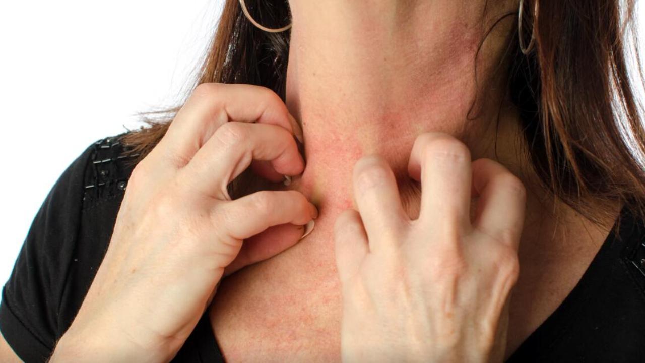 越挠越痒!神经性皮炎太折磨人,该如何治疗?