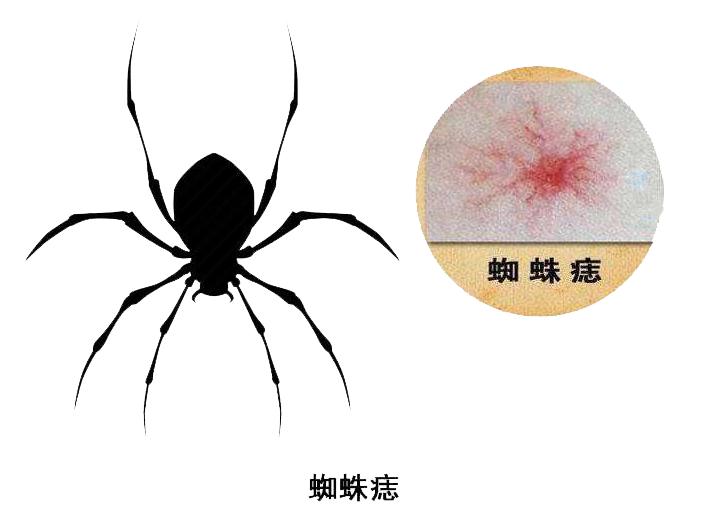 胸背部异常疼痛,有蜘蛛痣,最好去医院检查下,或是癌症的脚步声