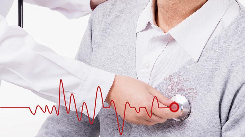 医学专家给心衰患者的个体化运动处方