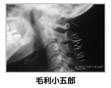 """""""沉睡的毛利小五郎""""颈椎病又犯了,一去医院拍片,结果是这样……"""