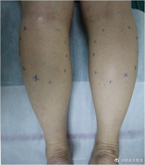 小腿需要吸脂、还是肉毒素注射