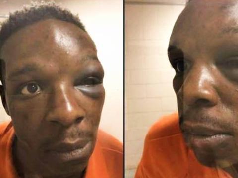 美国警员暴力执法再次发生,乔治亚州非裔男子被殴打致昏迷