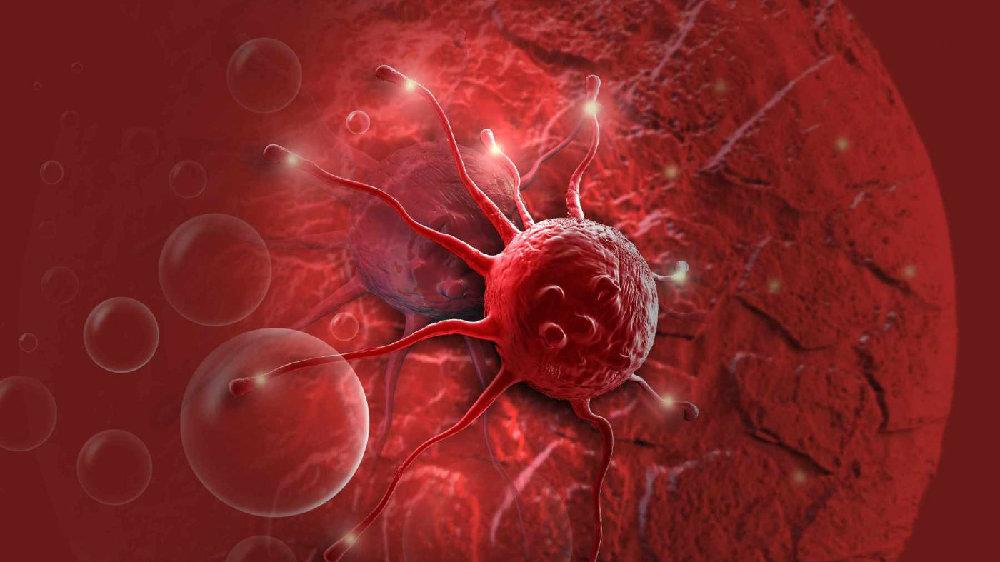 癌症晚期患者,若不是死于癌症,或会死于器官衰竭与出血急症