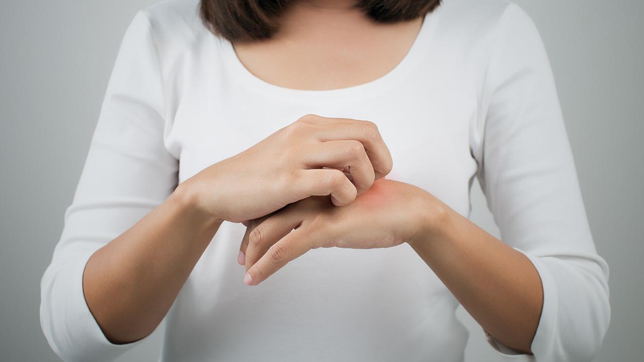 越挠越痒!患了神经性皮炎太折磨人,如何止痒?