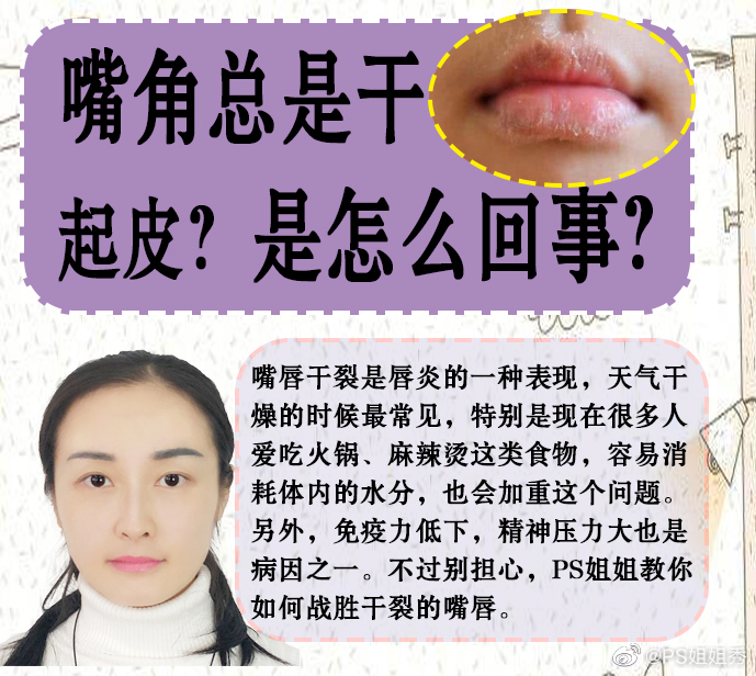 春天嘴巴总是干到起皮到底因为什么❓❓是因为缺水吗❓❓经常涂润唇膏