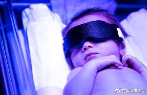 新生儿黄疸的三种类型,提醒:这种会影响宝宝智力发育,要注意
