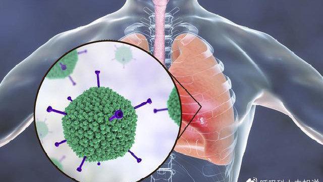 肺癌,肺结核以及肺炎,有区别也有关系,共同点:都可能威胁生命