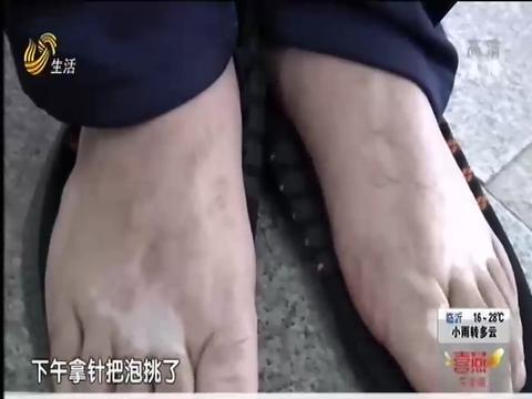 山东电视台《生活帮》栏目报道:心理压力大,只因脸上有白斑