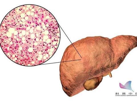都是脂肪肝,为什么有的没事,有的成了癌?只有胖人会得?瘦子更要当心