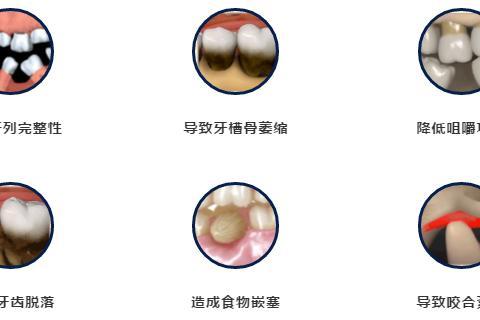 种植牙知多少?6月3-5日,种植大咖坐诊德州口腔医院