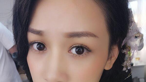 上海双眼皮+玻尿酸垫下巴恢复过程效果分享