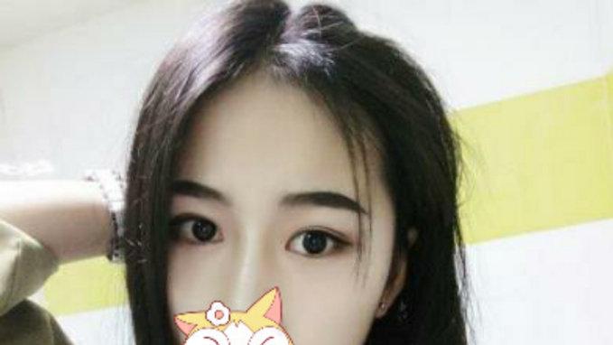 广州双眼皮手术效果真人分享对比照片