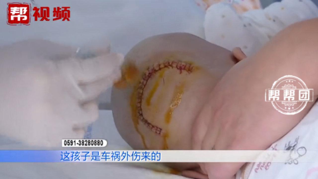心疼!未装安全座椅出车祸,5月大的男婴头骨撞凹陷