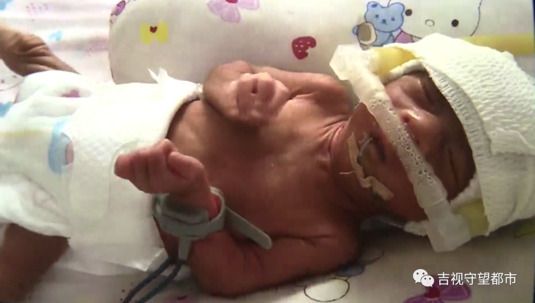 揪心!早产双胞胎体重之和,不如一个足月婴儿...